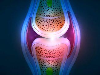 Afroamericanos con artritis reumatoide y enfermedades similares en ...