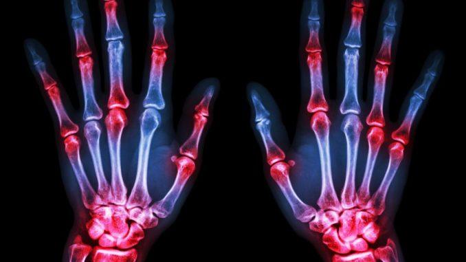El humo del tabaco no se ve en un estudio pequeño para empeorar la artritis reumatoide