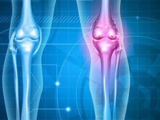 Hay una razón celular por la cual la artritis reumatoide puede diferir por ...